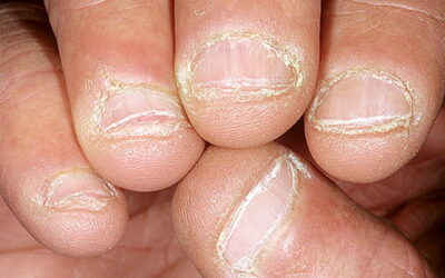 Nail Problems